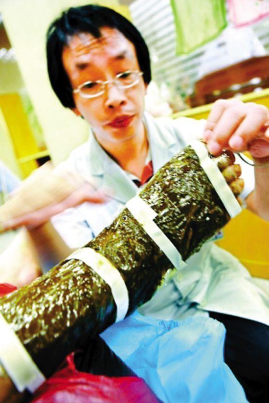 """市中医院蛇伤科主任曾仲意说:""""与十多年前相比,如今深圳每年被蛇咬的"""